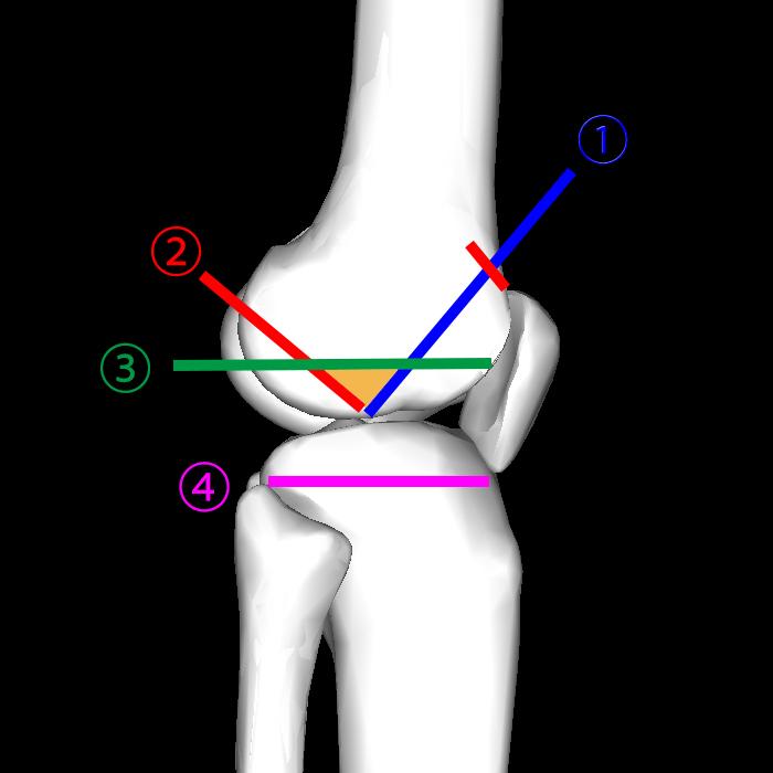 TKAの屈曲ギャップをどうやって微調整しているのか