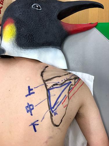 棘下筋の触診