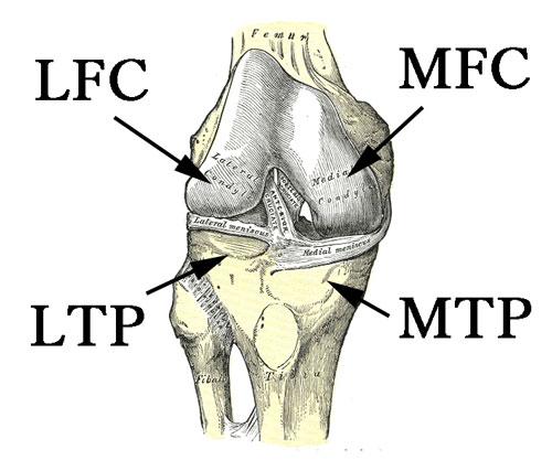 【膝関節編】整形外科でよく使う医学英語と略語