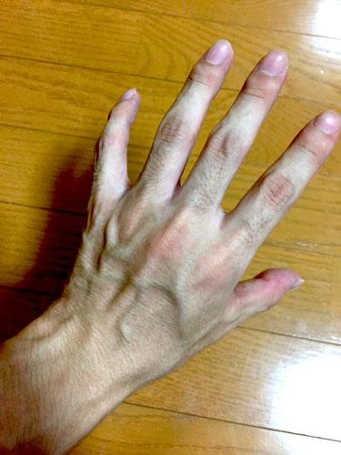 「手首が痛いから診てください」と言われて、どんな疾患を思い浮かべますか?