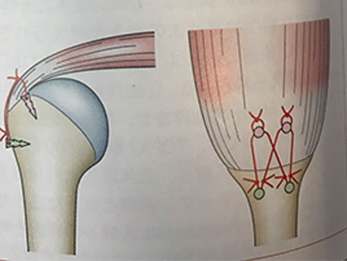 ARCRの一般的な手術の方法まとめ
